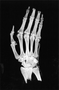 X-ray scan of the museum's mummy hand